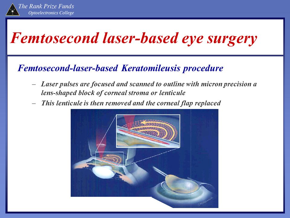 Femtosecond laser-based eye surgery
