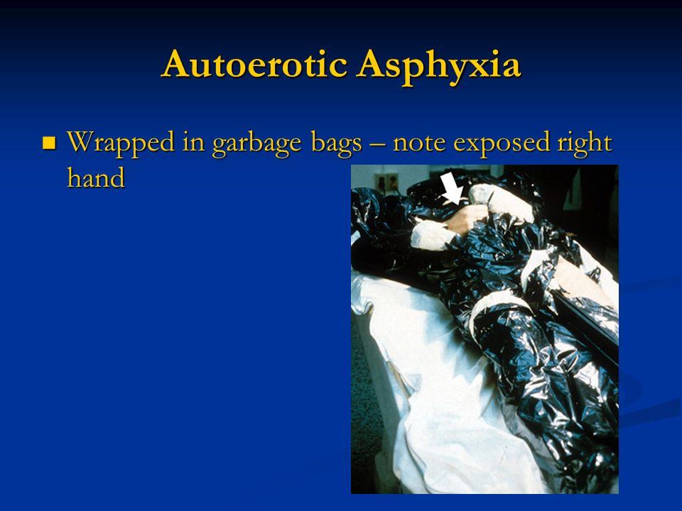 Definition Of Wrapped >> Gregory J. Davis, MD, FCAP Professor - ppt video online download