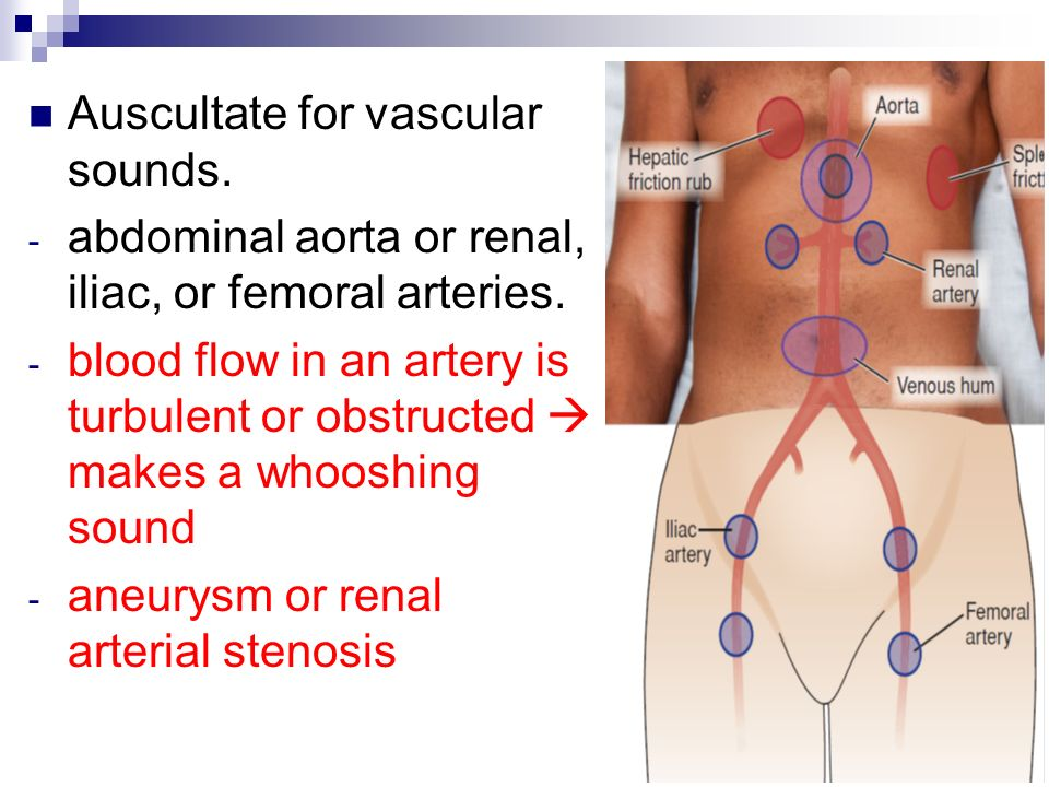 vascular sounds abdominal Abdominal aortic bruit - 22 and thin, nonsmoker dr found an abdominal aortic bruit today she didn't seem concerned, should i be likely flow due to thin body habitués but a vascular.