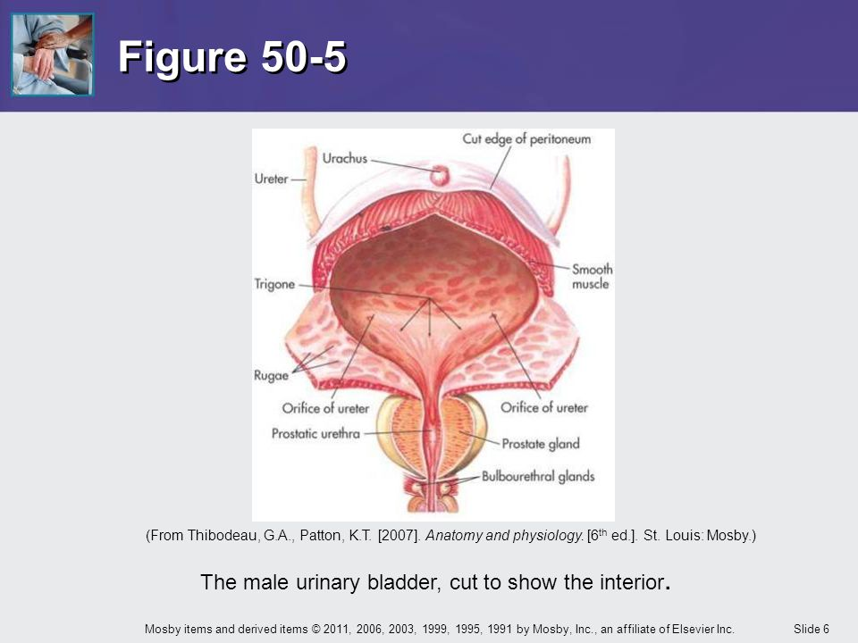 Chapter 50 Care of the Patient with a Urinary Disorder - ppt download