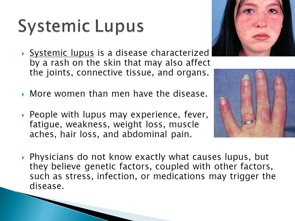lupus medications and weight loss