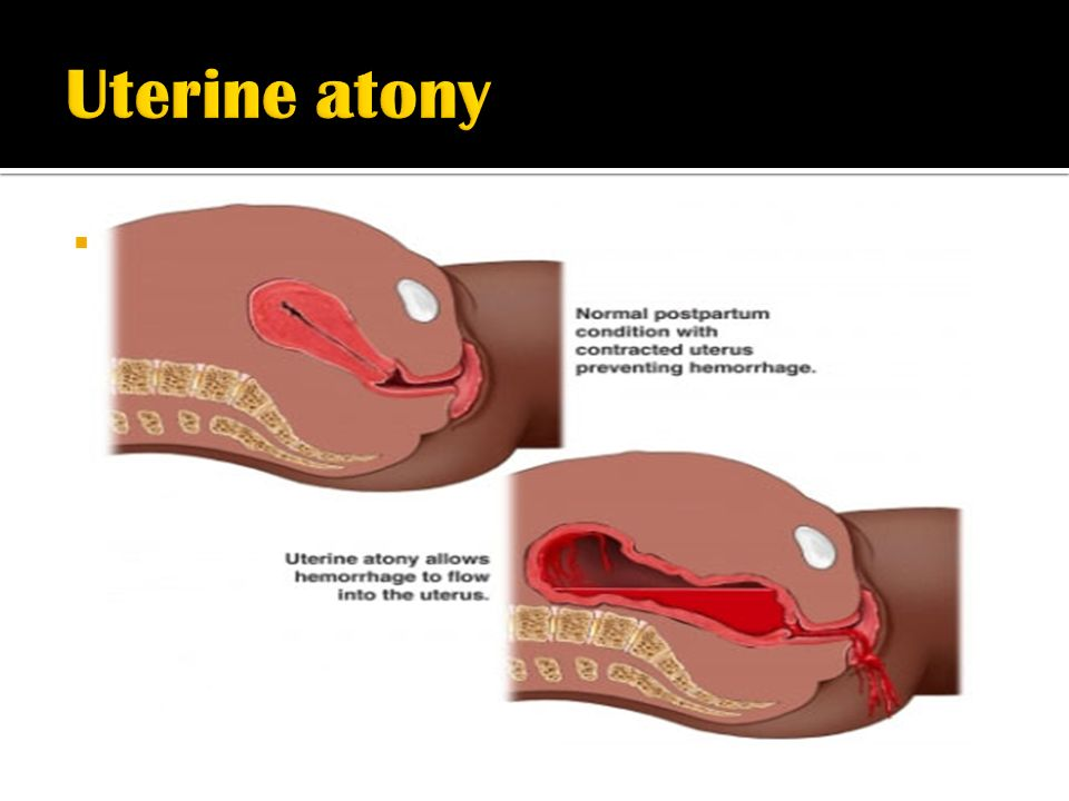 uterine atony pathophysiology Looking for online definition of postpartum hemorrhage in the medical dictionary postpartum hemorrhage causes of pph, particularly uterine atony.