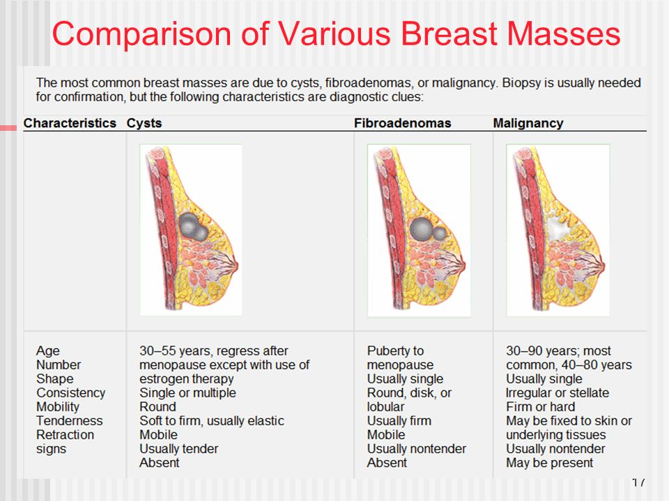 Breast cystic lesion