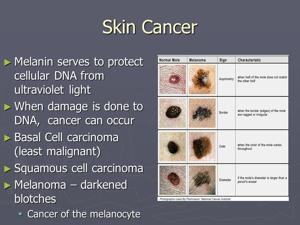 Skin Cancer Melanin serves to protect cellular DNA from ultraviolet light. When damage is done to DNA, cancer can occur.