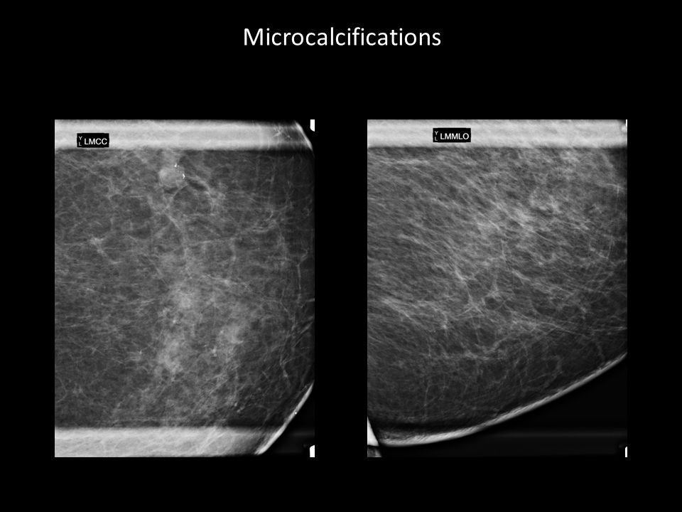 microcalcifications breast biopsy