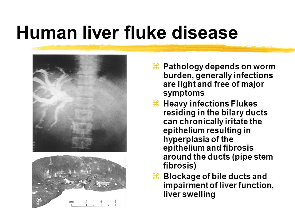 Best Natural Treatment For Liver Flukes In Humans