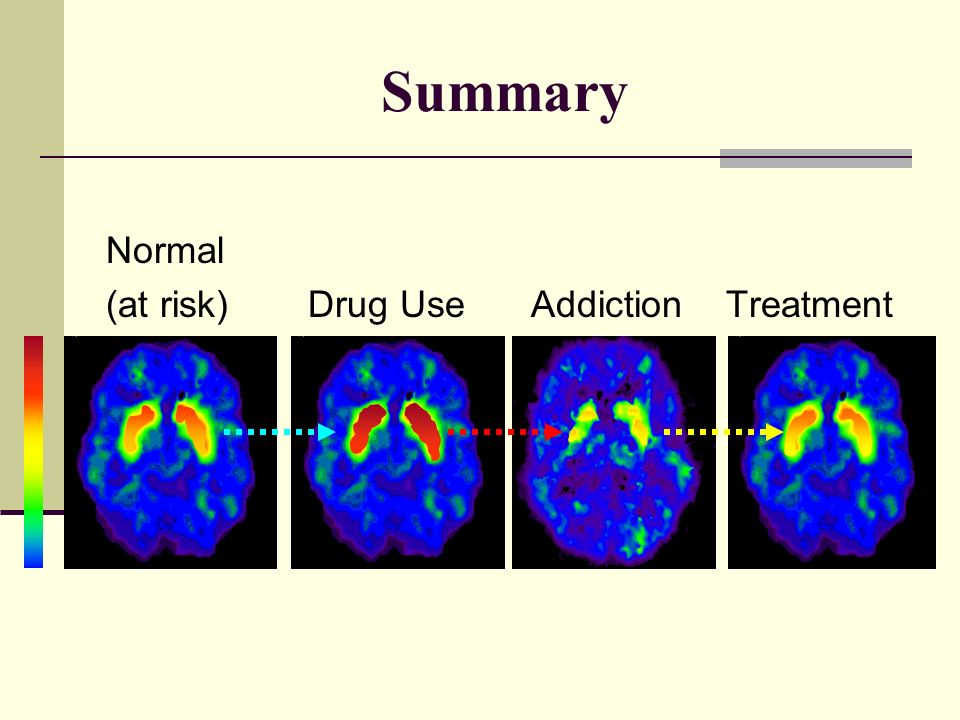 abstract about drug addiction A guide to writing conclusions in abstracts for addiction addiction publishes abstracts that are clear, accurate and succinct each abstract conclusion must provide the main generalisable statement resulting from the study.