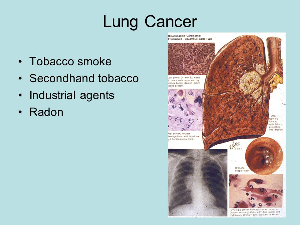 Secondhand smoke lung cancer