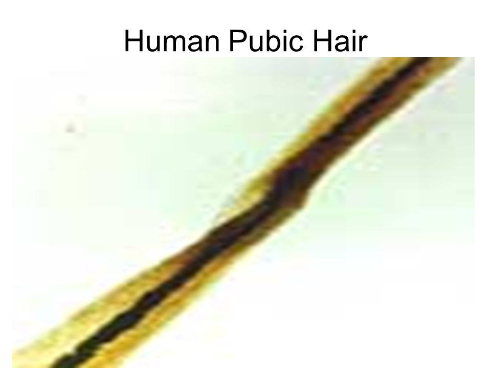 Great Looking Pubic Hair Pubic Hair Comparisons In Pubic