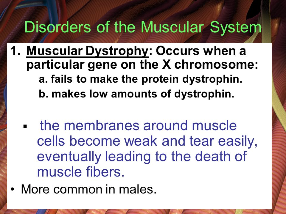 duchene's muscular dystrophy and amyotrophic lateral The most well known of the muscular dystrophies is duchenne muscular dystrophy  spinal muscular atrophies: amyotrophic lateral sclerosis.