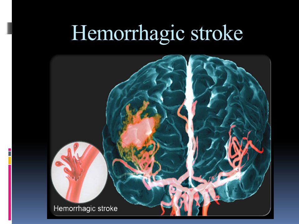 Dr. Hashemi MD Hemorrhagic stroke. Dr. Hashemi MD ...
