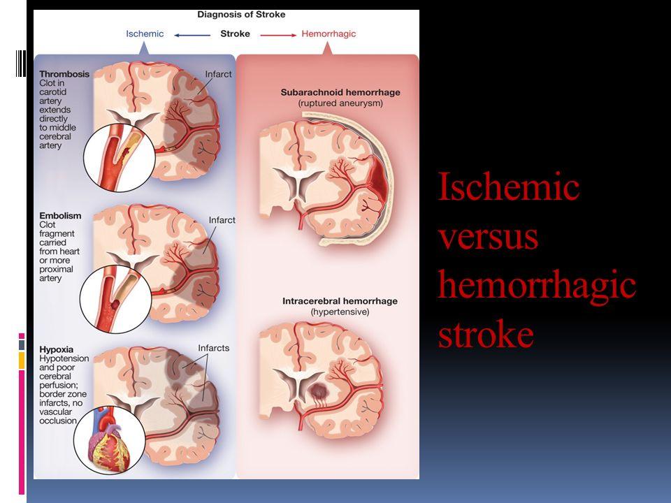 Dr. Hashemi MD Hemorrhagic stroke. Dr. Hashemi MD Hemorrhagic stroke ...