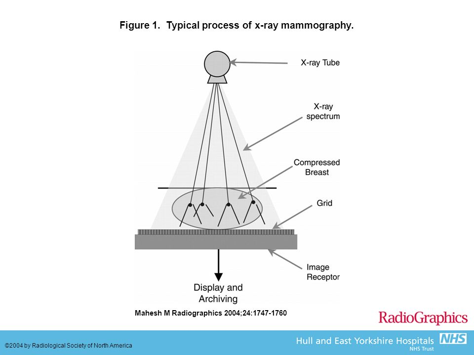 Figure 1. Typical process of x-ray mammography.