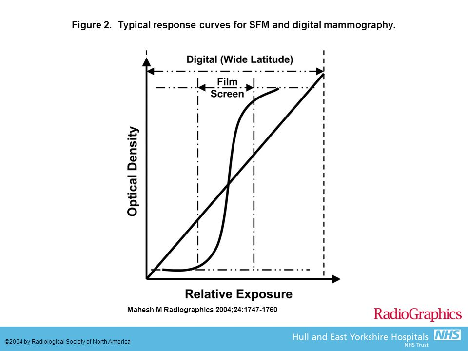 Figure 2. Typical response curves for SFM and digital mammography.