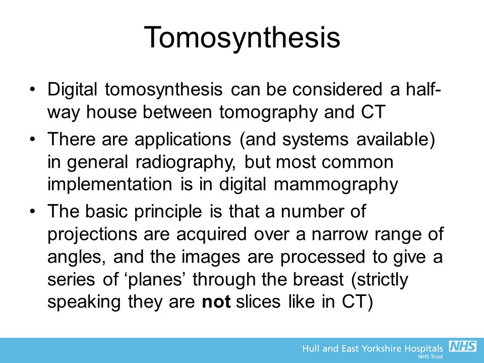 Tomosynthesis Digital tomosynthesis can be considered a half-way house between tomography and CT.