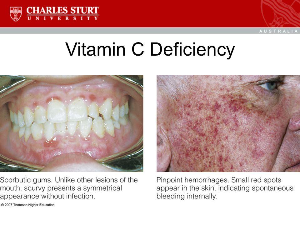 Vitamin C Deficiency Symptoms In Guinea Pigs