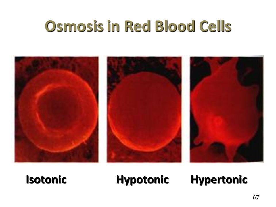 osmosis and red blood cells Wwwglencoecom.