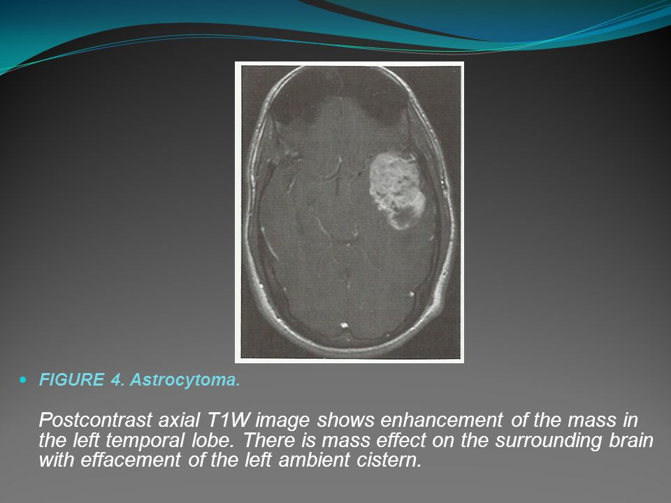 FIGURE 4. Astrocytoma.