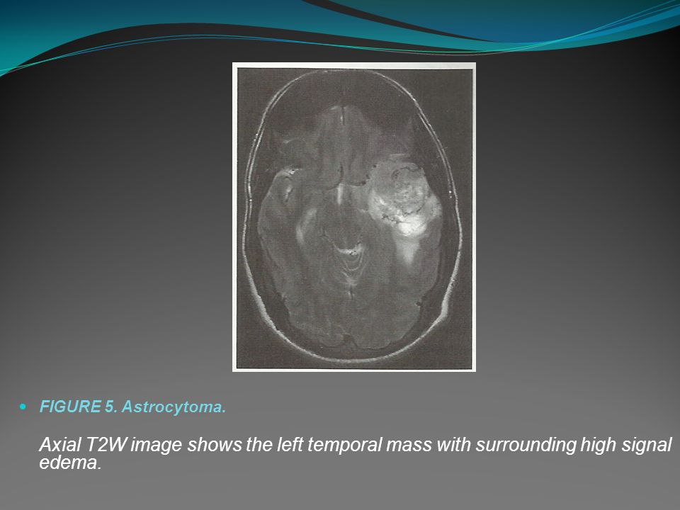 FIGURE 5. Astrocytoma.