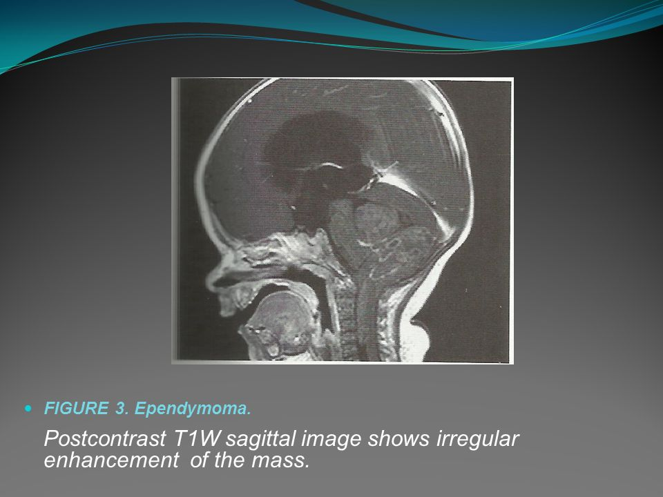 FIGURE 3. Ependymoma. Postcontrast T1W sagittal image shows irregular enhancement of the mass.