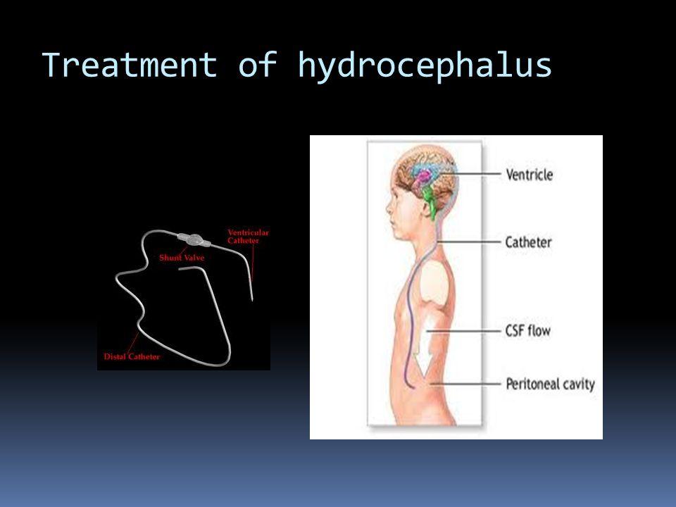Hydrocephalus prognosis for adult