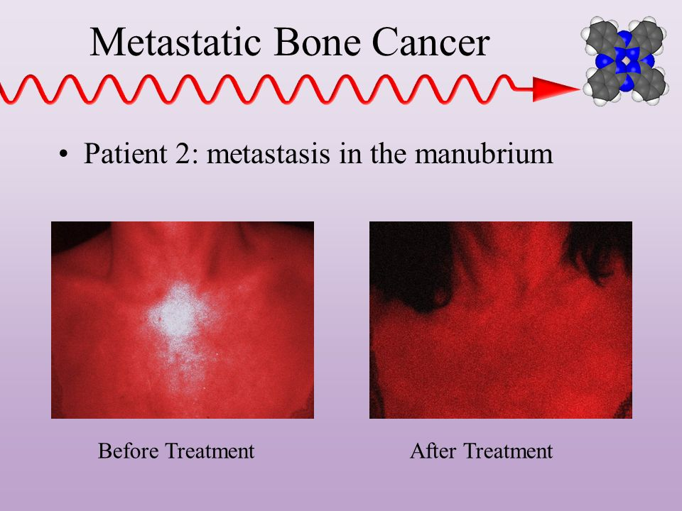 Metastatic Bone Cancer