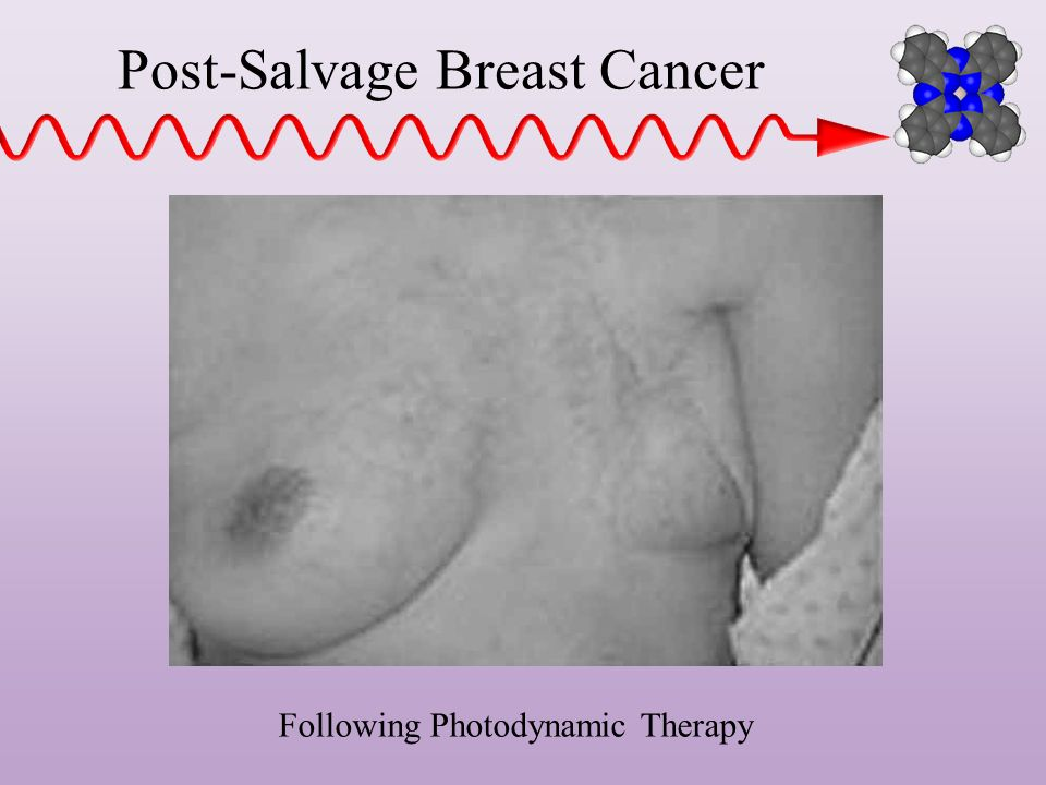 Post-Salvage Breast Cancer