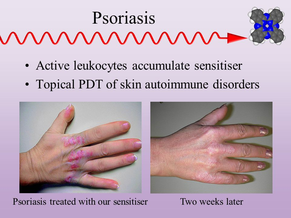 Psoriasis Active leukocytes accumulate sensitiser