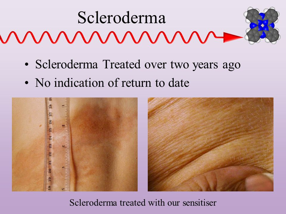 Scleroderma treated with our sensitiser