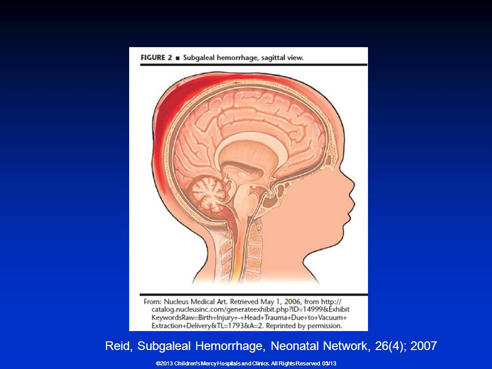 Subgaleal Hemorrhage Regional Neonatal Conference - ppt ... Vacuum Assisted Delivery
