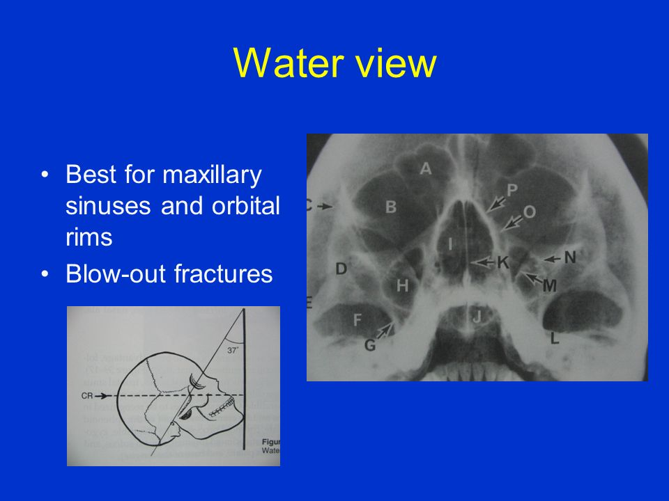 Water view Best for maxillary sinuses and orbital rims