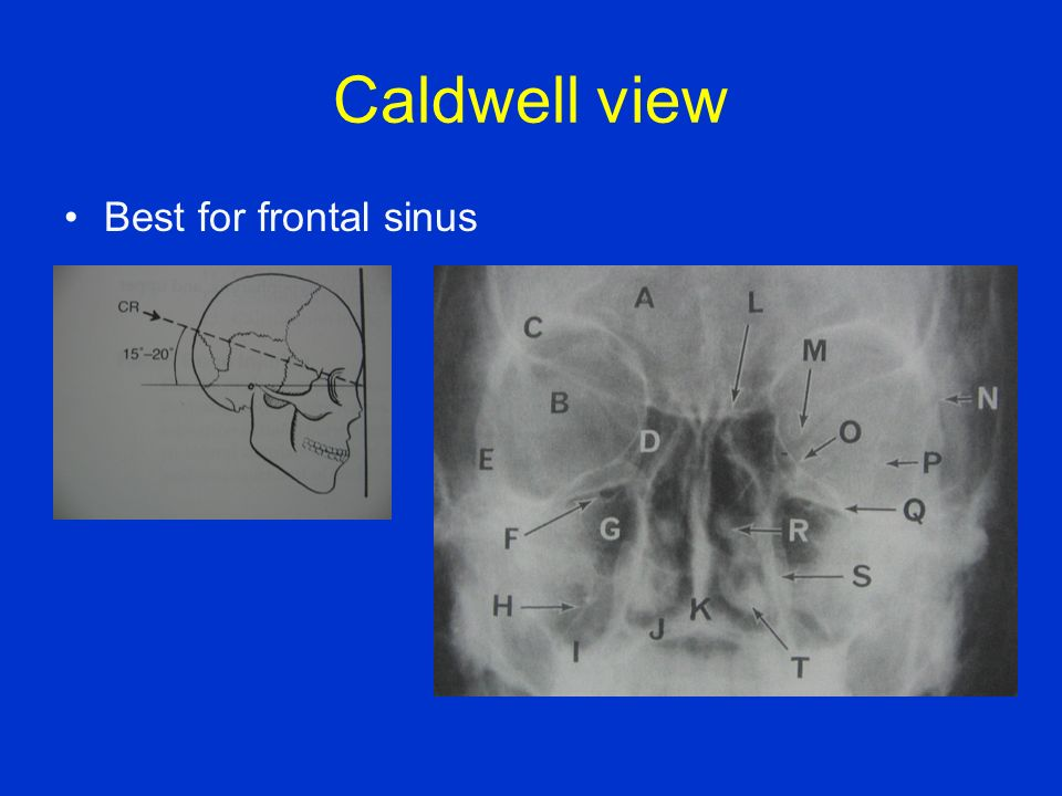 Caldwell view Best for frontal sinus