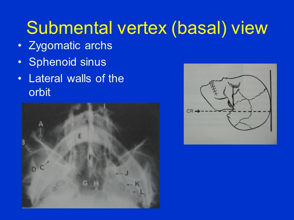 Submental vertex (basal) view