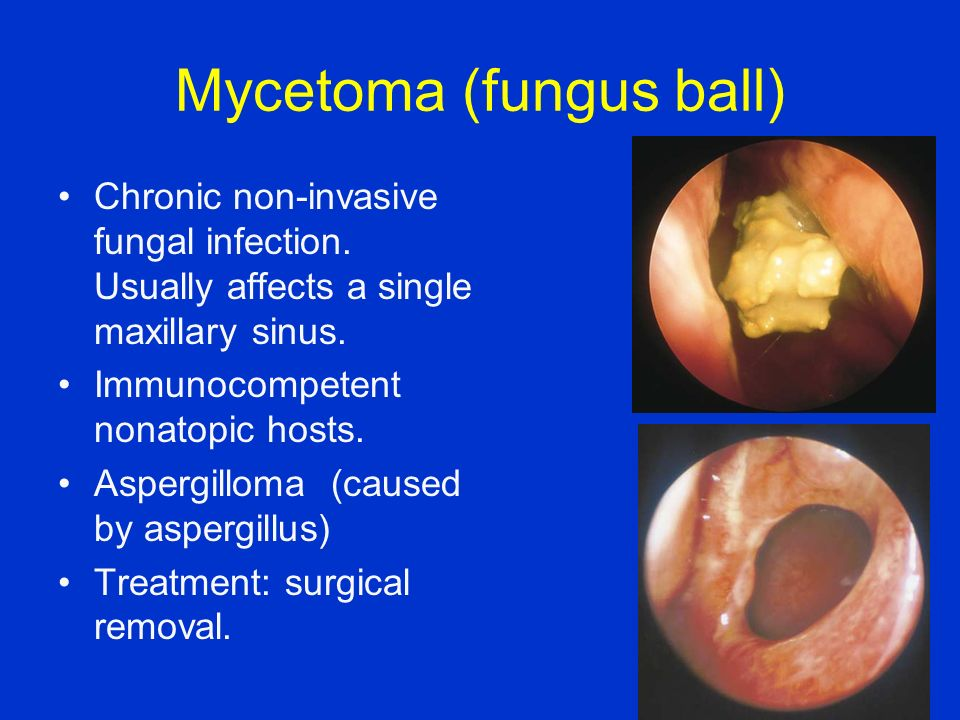 Mycetoma (fungus ball)
