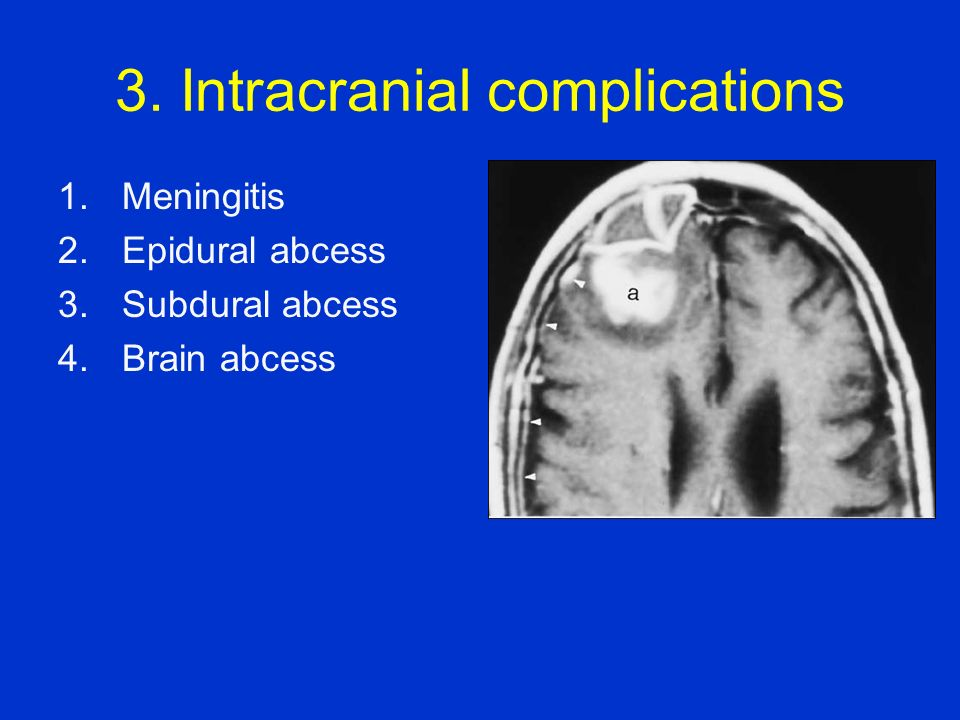 3. Intracranial complications