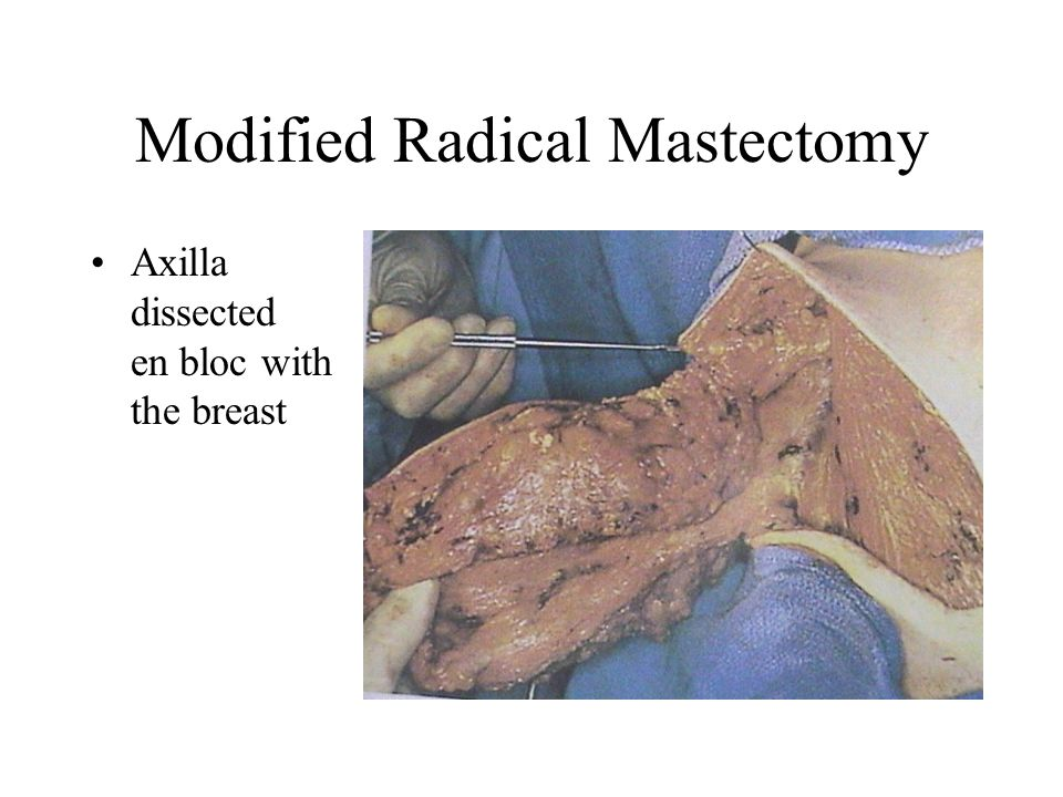 Axillary lymph node dissection boundaries in dating 2