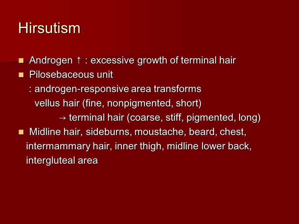 Hirsutism Androgen ↑ : excessive growth of terminal hair