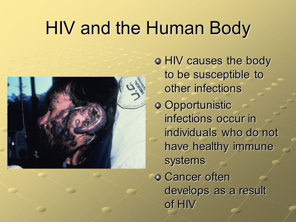 HIV and the Human Body HIV causes the body to be susceptible to other infections.