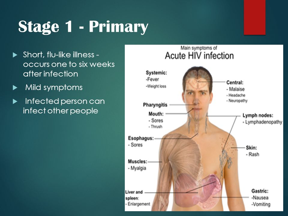 Stage 1 - Primary Short, flu-like illness - occurs one to six weeks after infection. Mild symptoms.