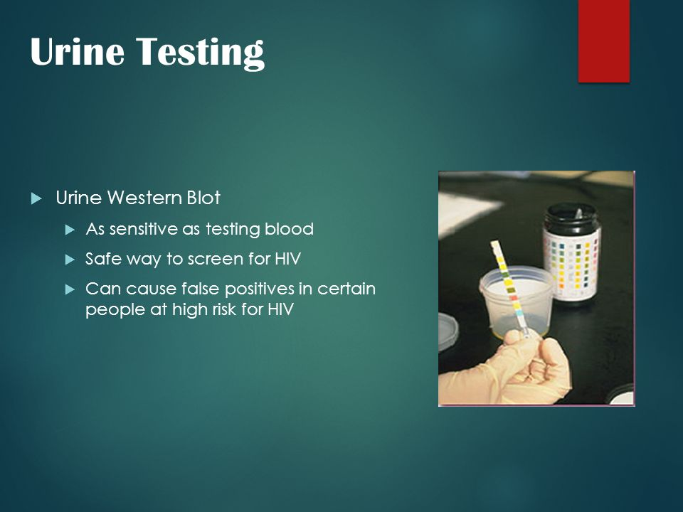 Urine Testing Urine Western Blot As sensitive as testing blood