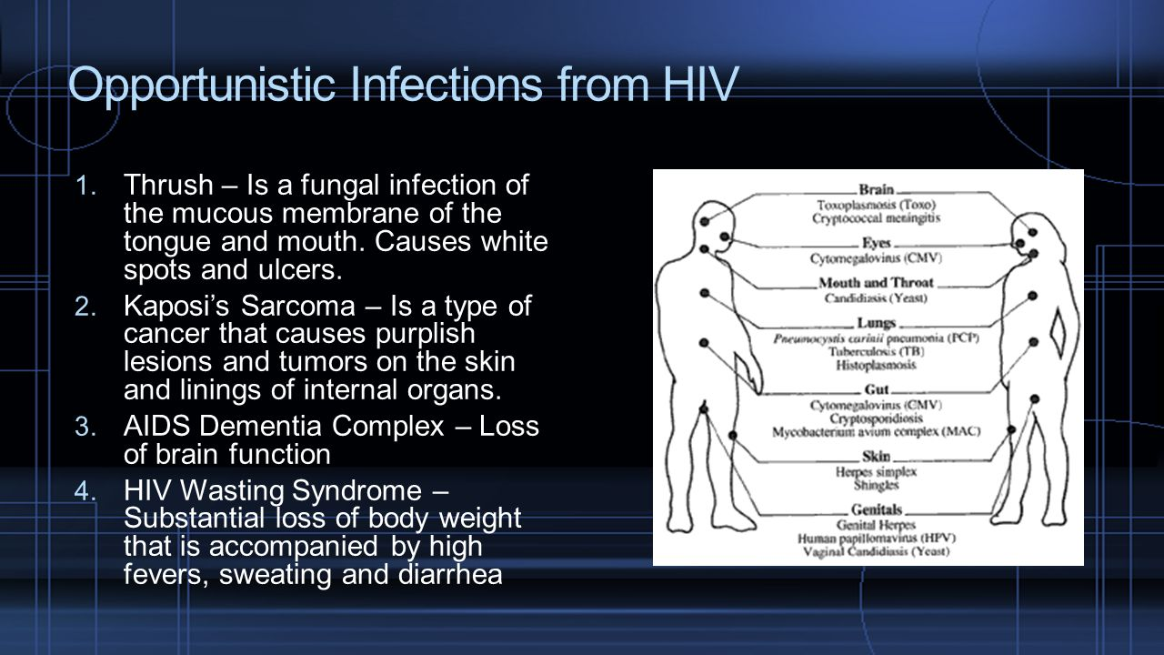 Opportunistic Infections from HIV
