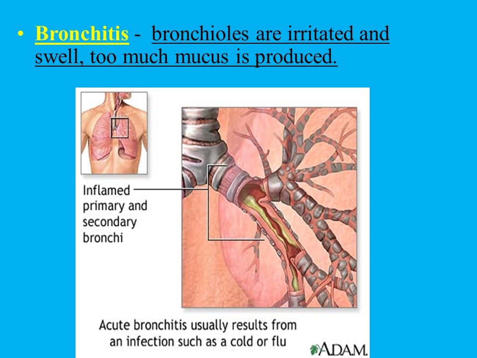 Bronchitis - bronchioles are irritated and swell, too much mucus is produced.