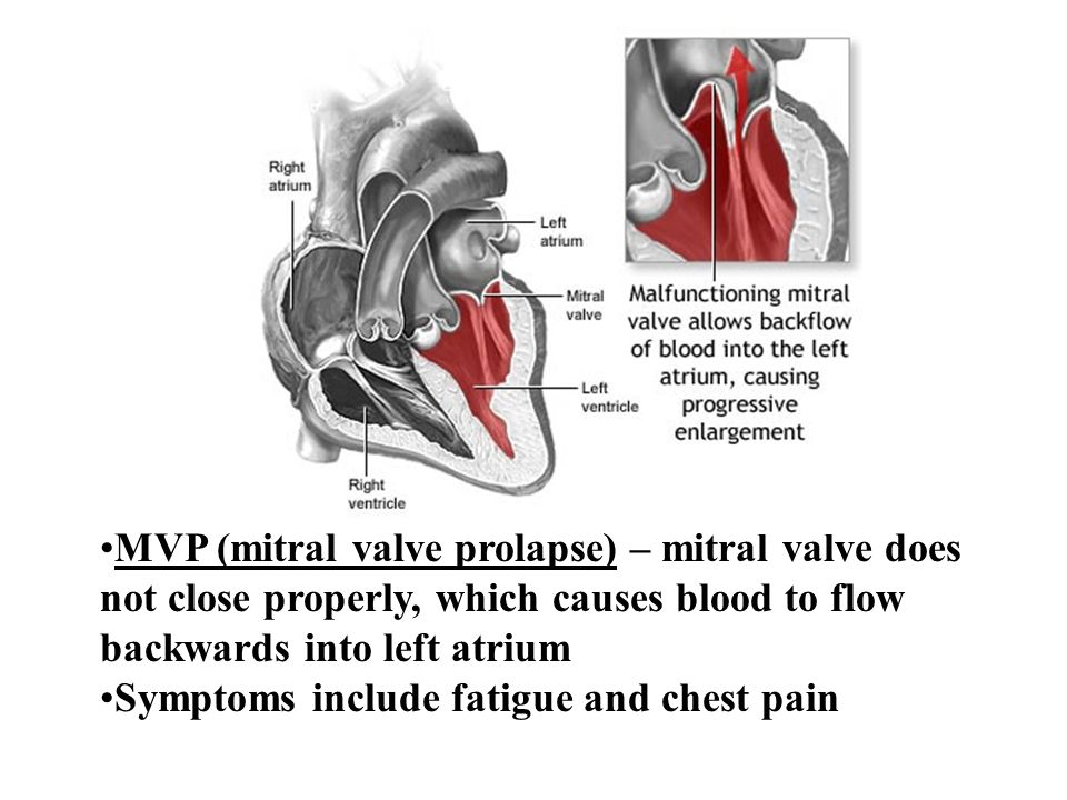 MVP (mitral valve prolapse) – mitral valve does not close properly, which causes blood to flow backwards into left atrium