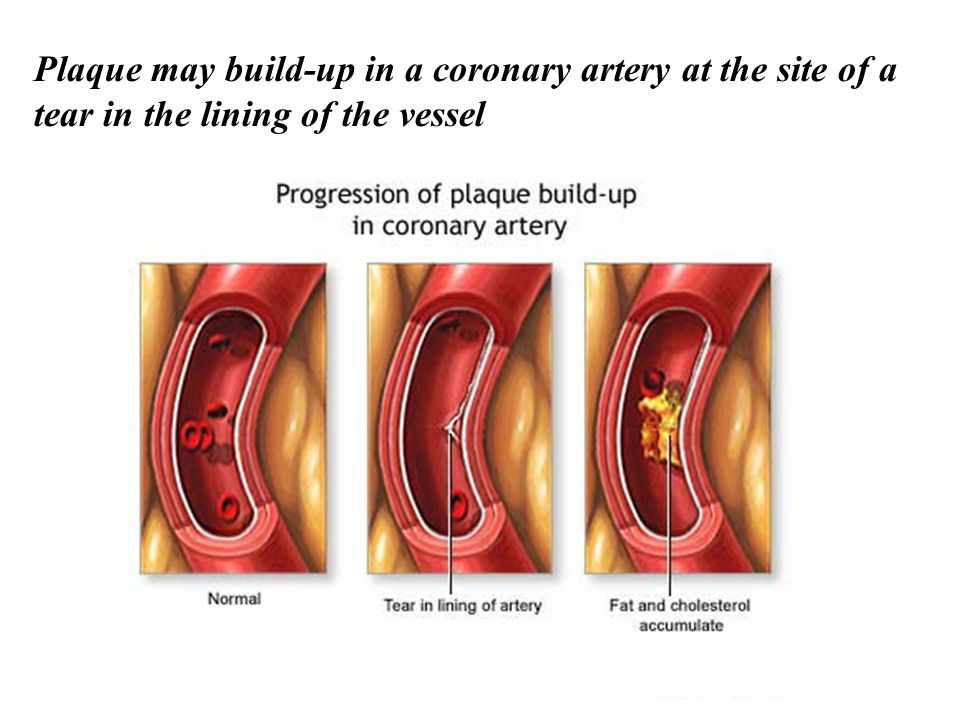 Plaque may build-up in a coronary artery at the site of a tear in the lining of the vessel