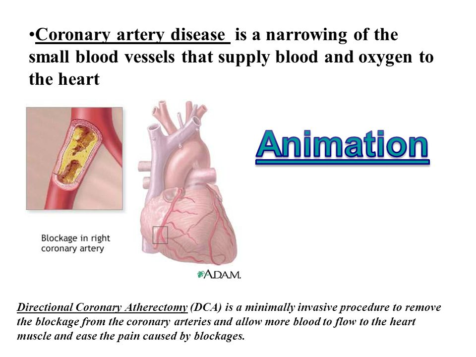 Coronary artery disease is a narrowing of the small blood vessels that supply blood and oxygen to the heart