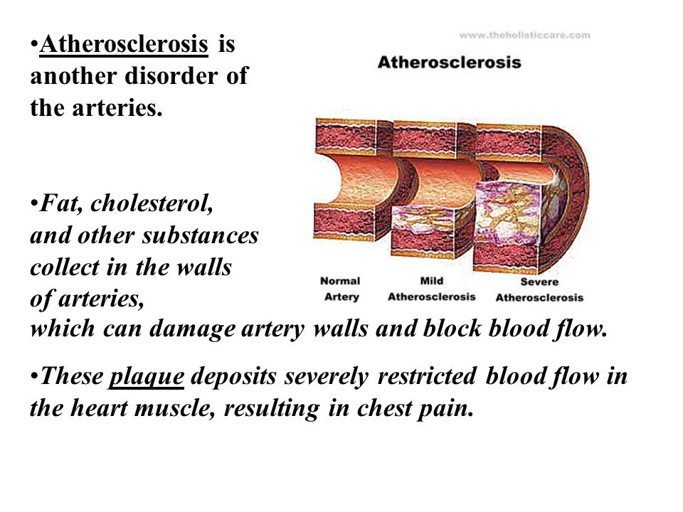 Atherosclerosis is another disorder of the arteries.