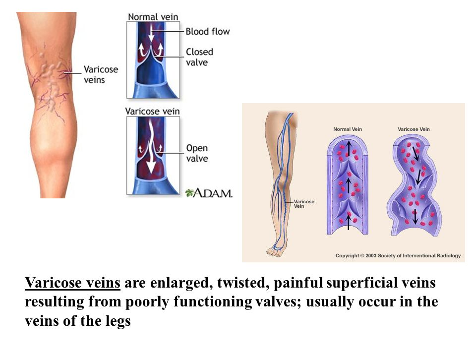 Varicose veins are enlarged, twisted, painful superficial veins resulting from poorly functioning valves; usually occur in the veins of the legs