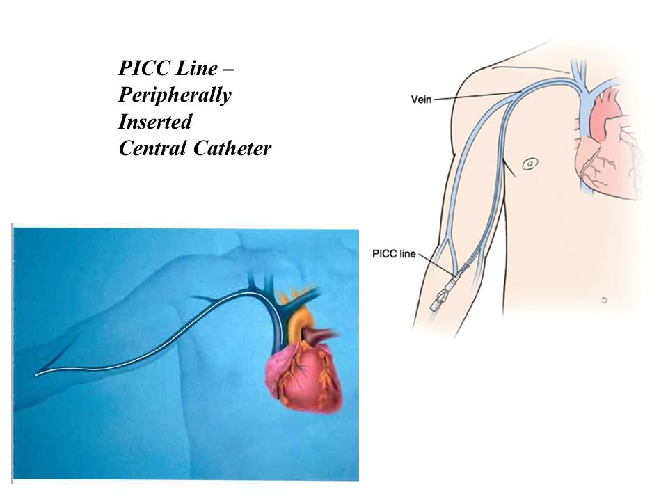 PICC Line – Peripherally Inserted