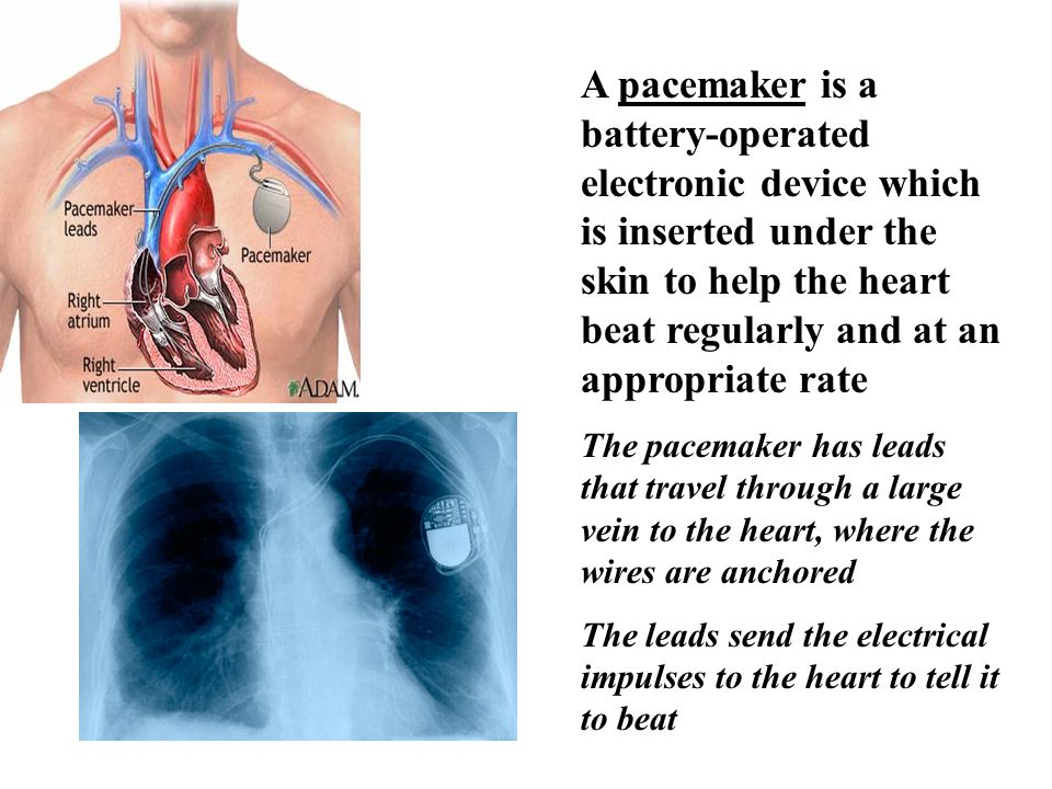 A pacemaker is a battery-operated electronic device which is inserted under the skin to help the heart beat regularly and at an appropriate rate