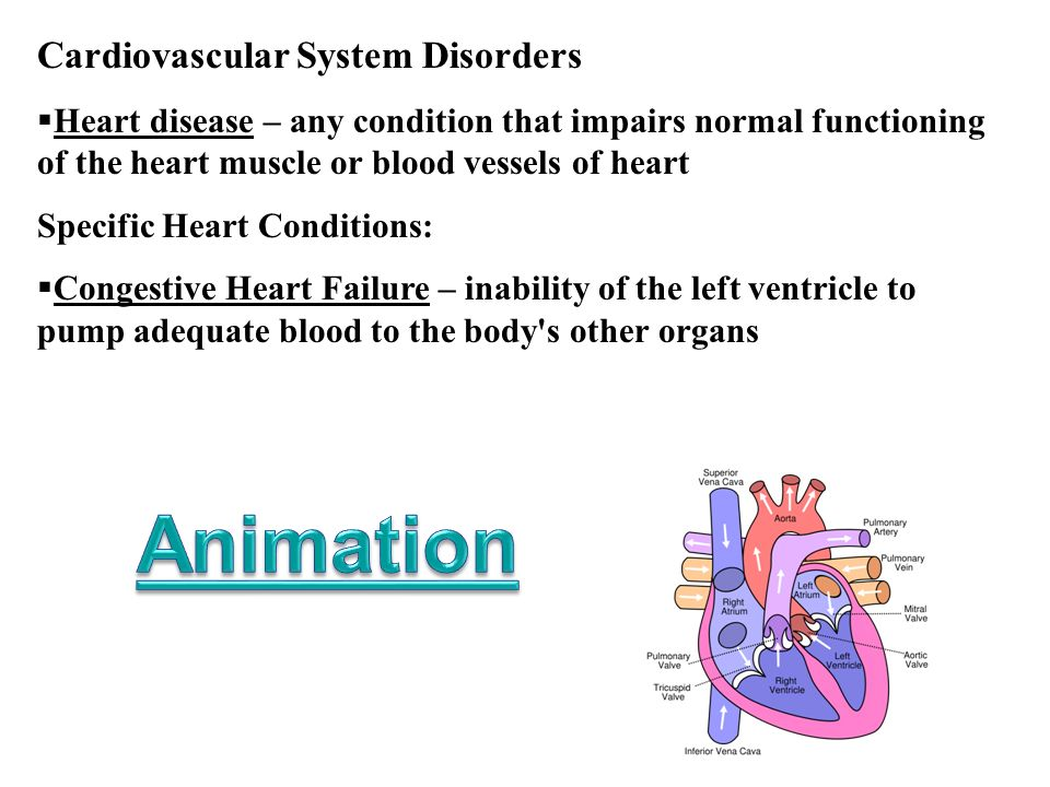 Animation Cardiovascular System Disorders